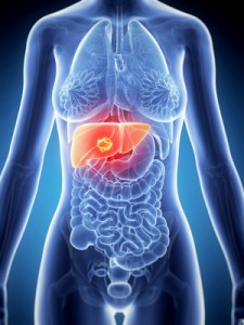 3d rendered illustration of the female anatomy - liver cancer